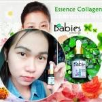เอสเซ้นคอลลาเจน ผิวหน้าเงา Babies Young Essence Collagen