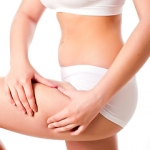 เซลลูไลท์ (Cellulite) หรือ ไขมันส่วนเกิน