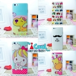 เคส OPPO R1 -Cartoon Hard case [Pre-Order]