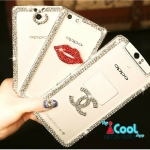 OPPO N1 Mini -Jewely hard Case [Pre-Order]