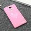เคส OPPO R7 Plus - Vogue Mini hard Case [Pre-Order] thumbnail 9