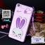 เคส Oppo F1s - เคสTPU กระต่ายหูพับตั้งได้ [Pre-Order] thumbnail 8