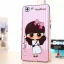 เคส OPPO R5 - Cartoon Silicone Case[Pre-Order] thumbnail 11