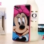 เคส OPPO Neo 5s -Cartoon Silicone Case [Pre-Order] thumbnail 4