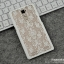 เคสมือถือ OPPO R7 Plus - Korea fashion hard Case [Pre-Order] thumbnail 27